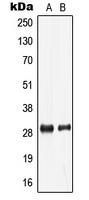 CPA2918-100ul - LDLRAD2