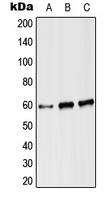 CPA2927-100ul - Angiopoietin-2