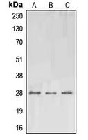 CPA2960-100ul - Erythropoietin / EPO