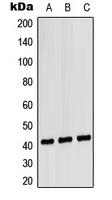 CPA2972-100ul - CD181 / IL8RA