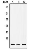 CPA2975-100ul - Insulin