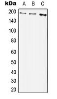 CPA2994-100ul - CD140b / PDGFRB