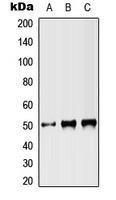 CPA3012-100ul - ST3GAL3