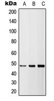 CPA3028-100ul - CD262 / TRAILR2