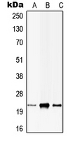 CPA3040-100ul - CIB1
