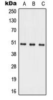 CPA3091-100ul - Alkaline ceramidase 1
