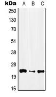 CPA3102-100ul - IFN alpha 1