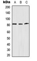 CPA3111-100ul - Alpha-Adducin / ADD1