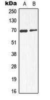 CPA3119-100ul - Alpha-fetoprotein / AFP