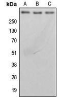 CPA3150-100ul - BRCA2 / FANCD1