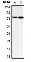 CPA3306-100ul - PTPN11 / PTP2C