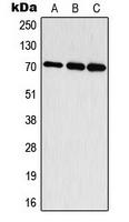 CPA3314-100ul - RPS6KB1 / STK14A