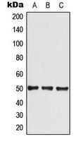CPA3318-100ul - GLUT4 / SLC2A4