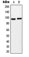 CPA3321-100ul - ST14 / Matriptase