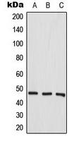 CPA3328-100ul - Aurora kinase A
