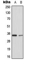 CPA3342-100ul - TNFAIP1 / EDP1