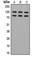 CPA3470-100ul - Alpha-adducin