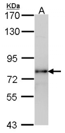 GTX100008 - Luteinizing Hormone Receptor (LHCGR)