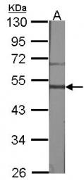 GTX100015 - Gastrin-releasing peptide receptor