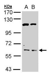 GTX100033 - Acetylcholinesterase