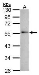 GTX100047 - Annexin A11 / ANXA11