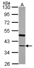 GTX100048 - Annexin A13 / ANXA13