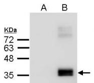 GTX100053 - Apolipoprotein E / Apo E