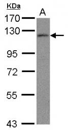 GTX100056 - Androgen receptor