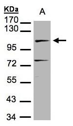 GTX100100 - DNA ligase 4