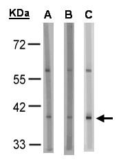 GTX100170 - Succinate receptor 1 / GPR91