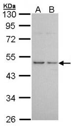 GTX100187 - Histamine H3 receptor
