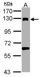 GTX100232 - DDB1 / XAP1