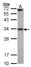 GTX100245 - Calcipressin-1