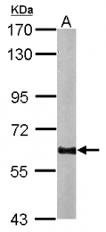 GTX100281 - GAD2 / GAD65