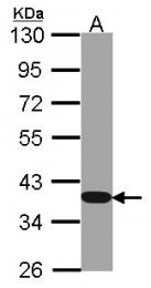 GTX100283 - GAPDH