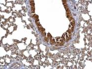 GTX100289 - 14-3-3 protein sigma / SFN