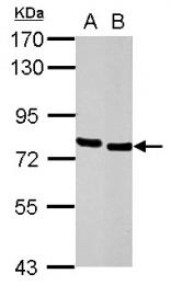 GTX100303 - HCLS1