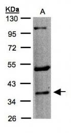 GTX100321 - Serotonin receptor 1F (HTR1F)