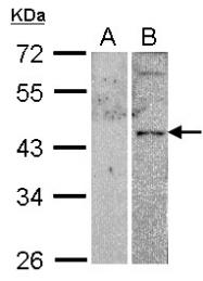 GTX100324 - PACAP type III receptor /  VIP Receptor 2