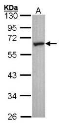 GTX100329 - Serotonin receptor 2C (HTR2C)