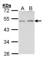 GTX100356 - Endothelin B receptor