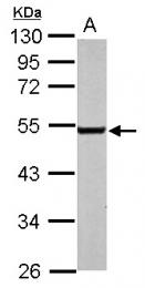 GTX100357 - Endothelin B receptor
