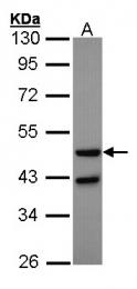 GTX100384 - Glucagon receptor