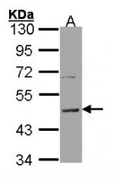 GTX100386 - Histamine H3 receptor