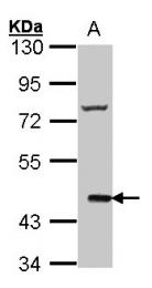 GTX100391 - Cannabinoid receptor 2