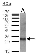GTX100446 - CDKN1B / KIP1