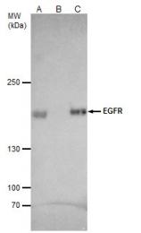 GTX100448 - EGFR / ERBB1