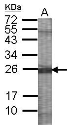 GTX100485 - ABP1