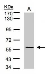 GTX100508 - CD105 / Endoglin
