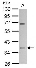 GTX100518 - Cannabinoid receptor 2